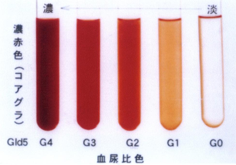 スケール 血尿