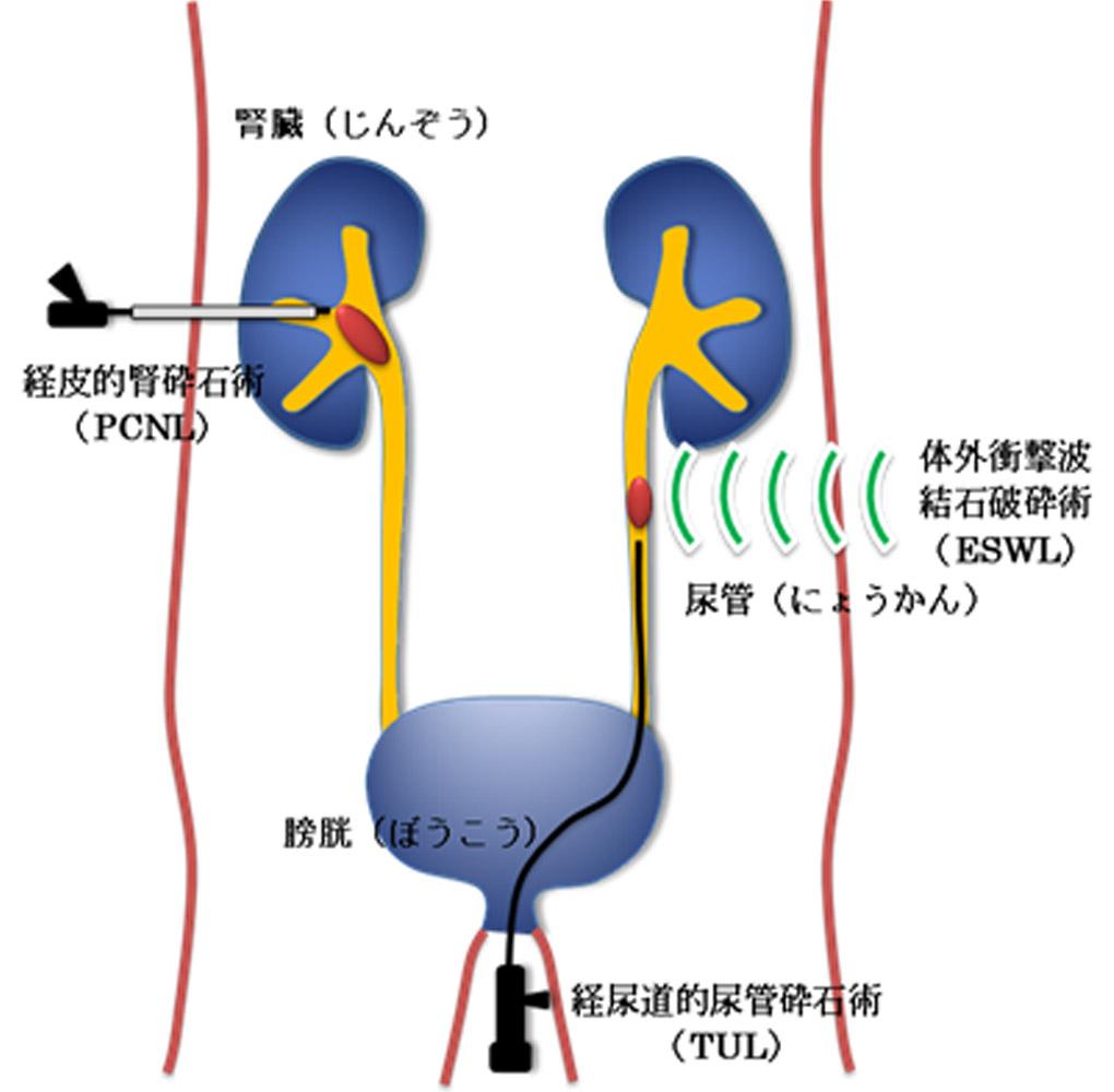 尿 路 結石 予防 泌尿器科 - 受診案内 - 聖路加国際病院